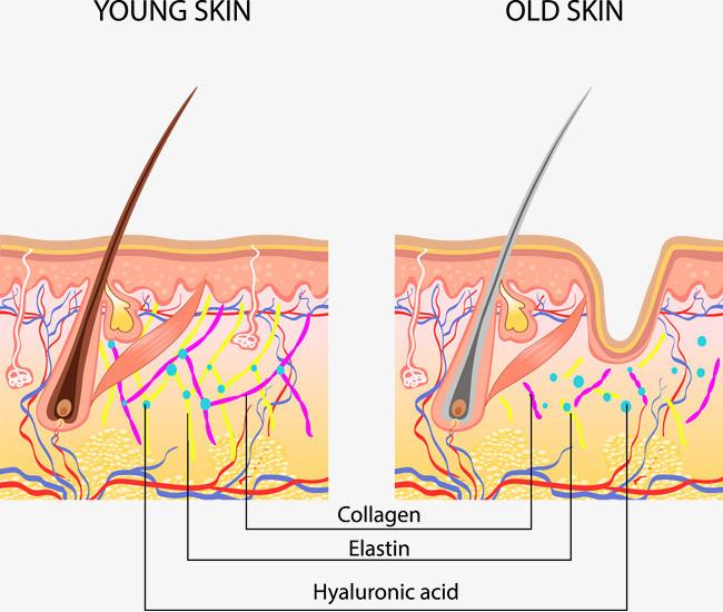 年轻人皮肤和老年人皮肤结构对比分析图