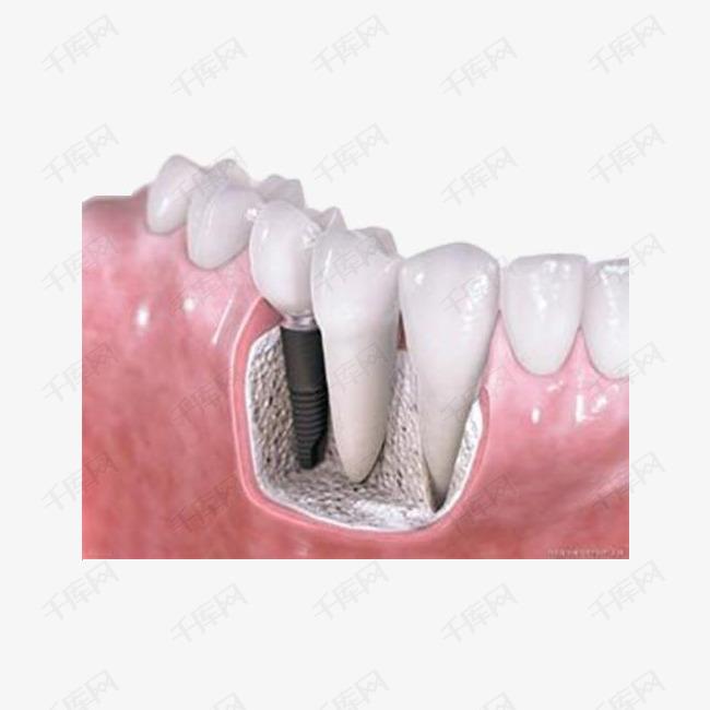 种牙齿的原理_1700种机械原理动态图